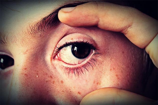 Custar os olhos da cara